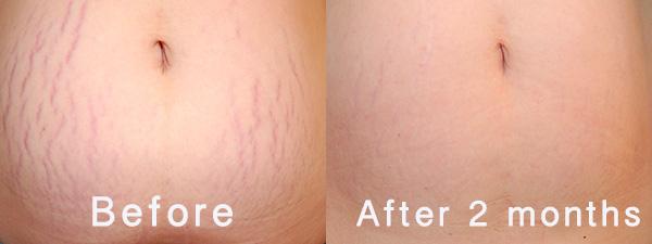 Using Shilajit to treat stretch marks